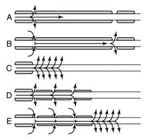 demyelinated-axon